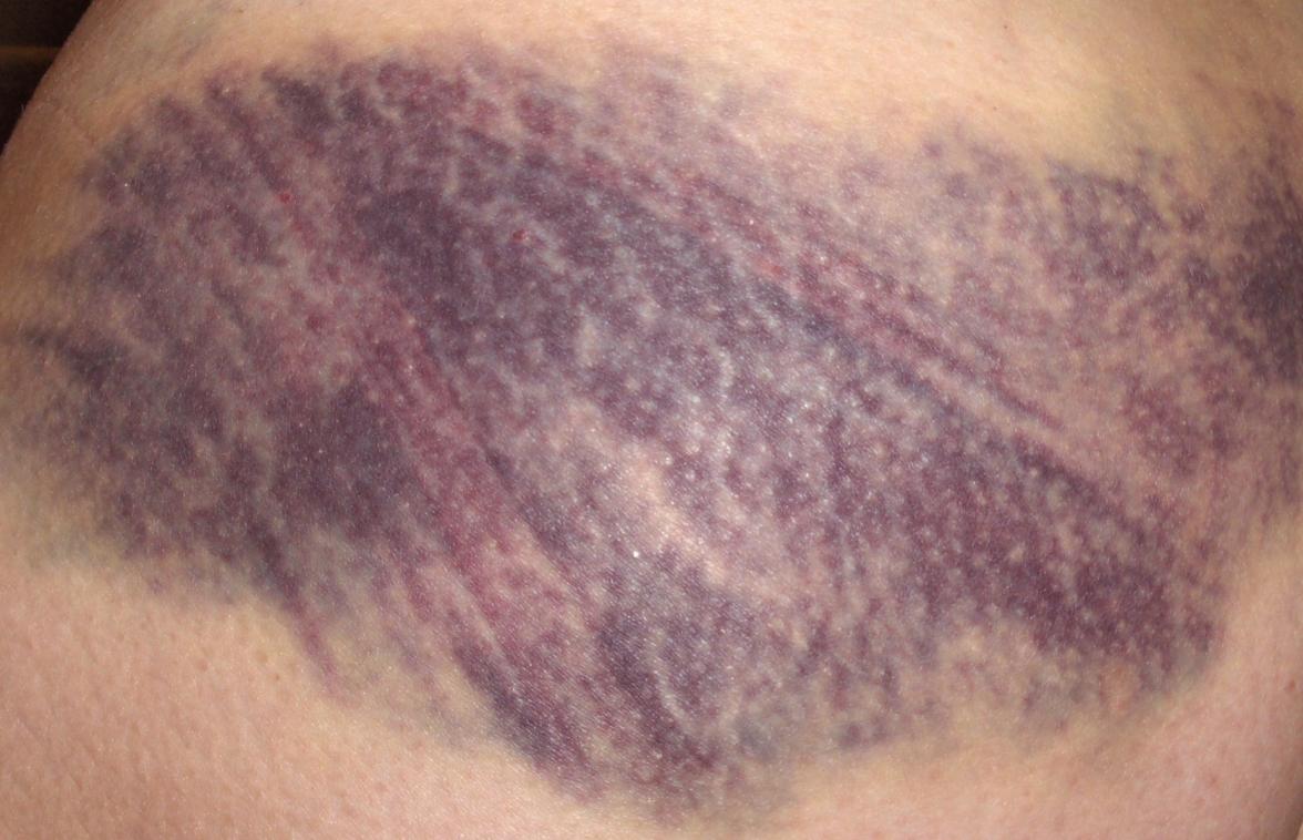 bruised butt